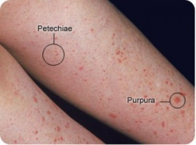 Petechiae rash