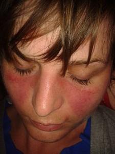Butterfly rash - Lupus