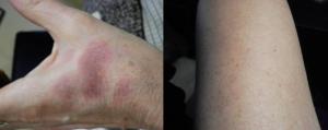 Post fluoroquinolone skin reactions