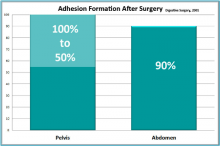 Adhesion Formation after Surgery