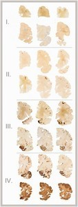 Brain damage with Traumatic Head Injury
