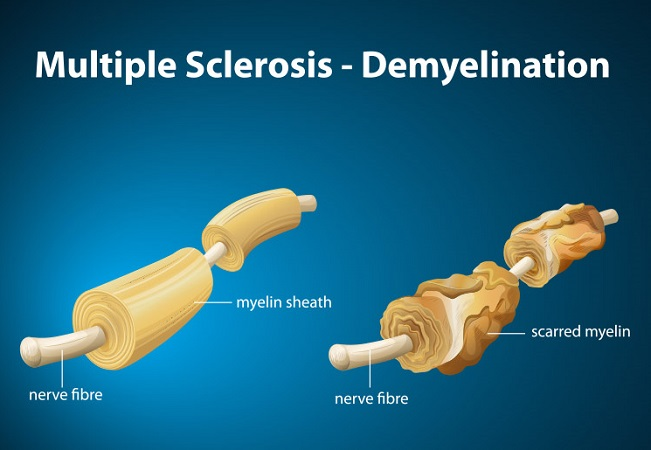 Multiple sclerosis vitamin D