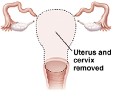 Hysterectomy - uterus and cervix removed