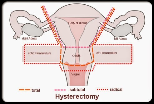 Sex post hysterectomy cervical removal
