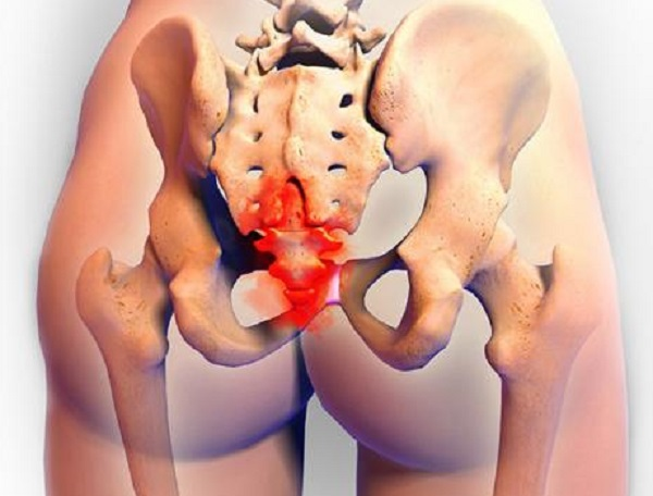 Can sex cause tailbone pain