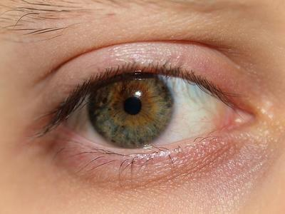 hysterectomy, hormones and dry eyes