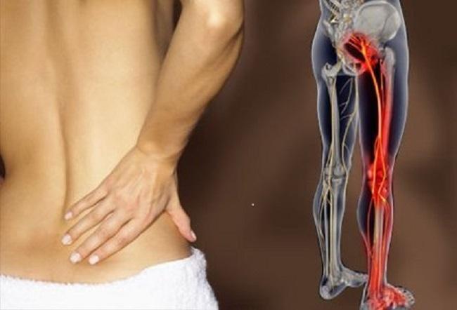 sciatic endometriosis