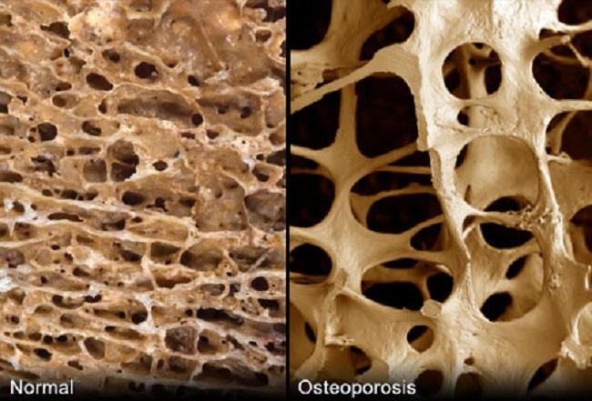 lupron osteoporosis