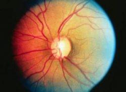 glaucoma dysautonomia