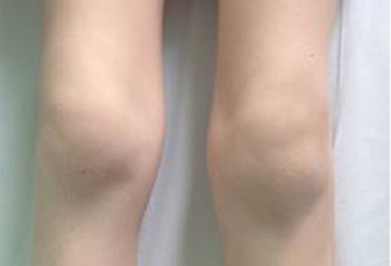 Juvenile rheumatoid arthritis treatment with thiamine