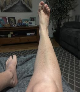 What my legs look like now