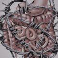 Severe gut dysmotility